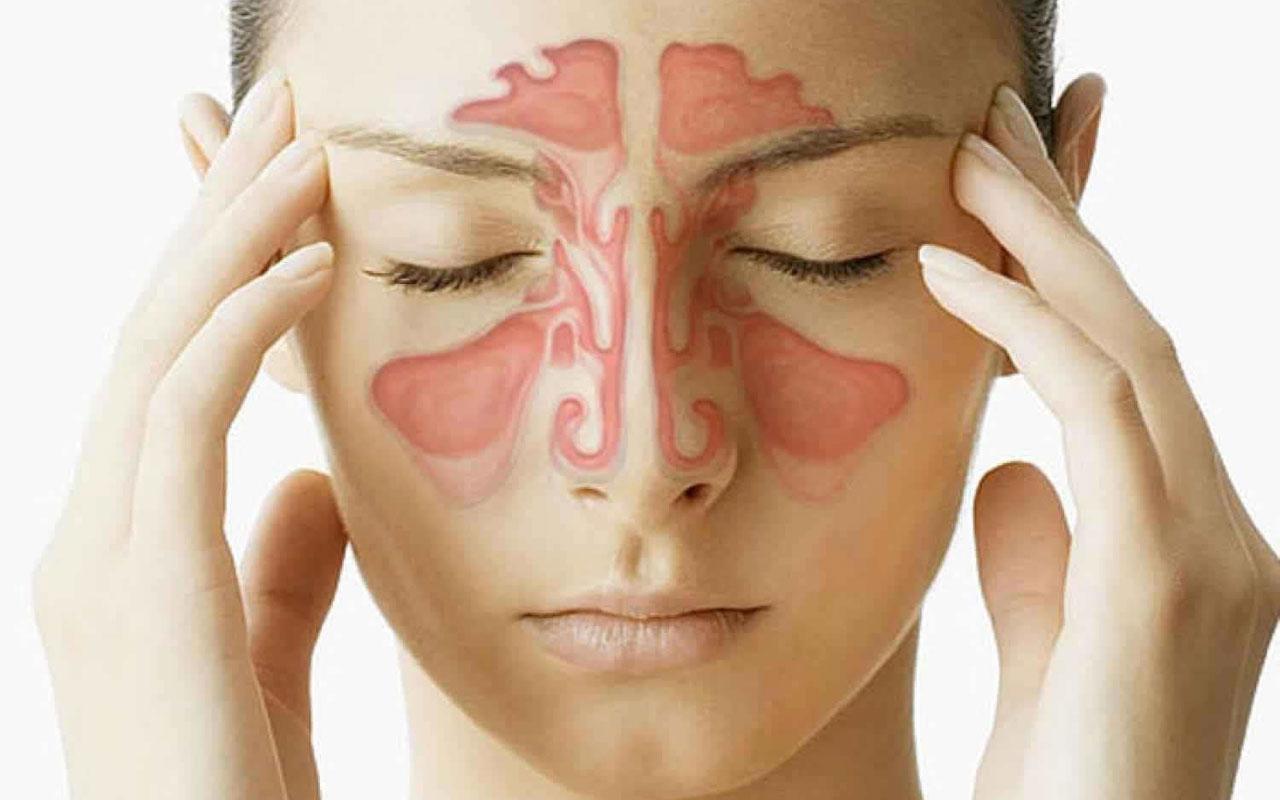 Sinüzit pek çok hastanın hayat kalitesini bozuyor